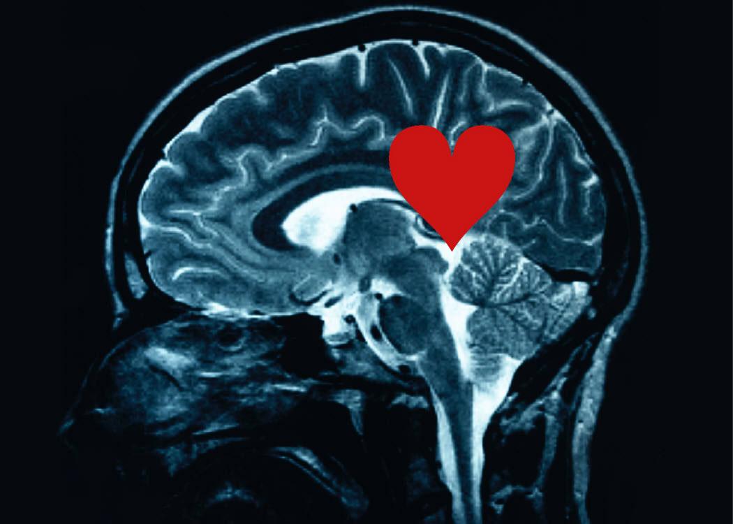 Cerveau amour