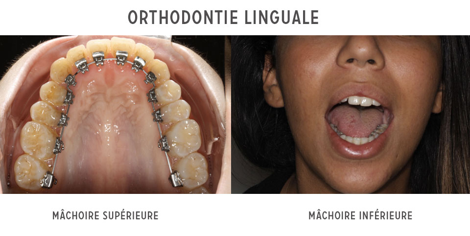 dents besoin appareil dentaire